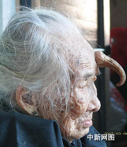 广东湛江95岁老寿星额头长犄角 长约12厘米 - 潘伯澜后裔联谊书院 - 潘氏伯澜公后裔联谊 广东潘氏宗亲网